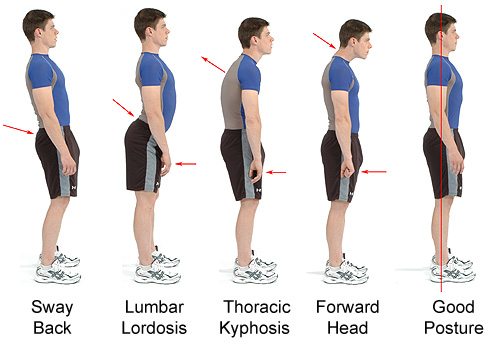 How to Improve Posture? Posture Exercises to Correct Bad Posture.
